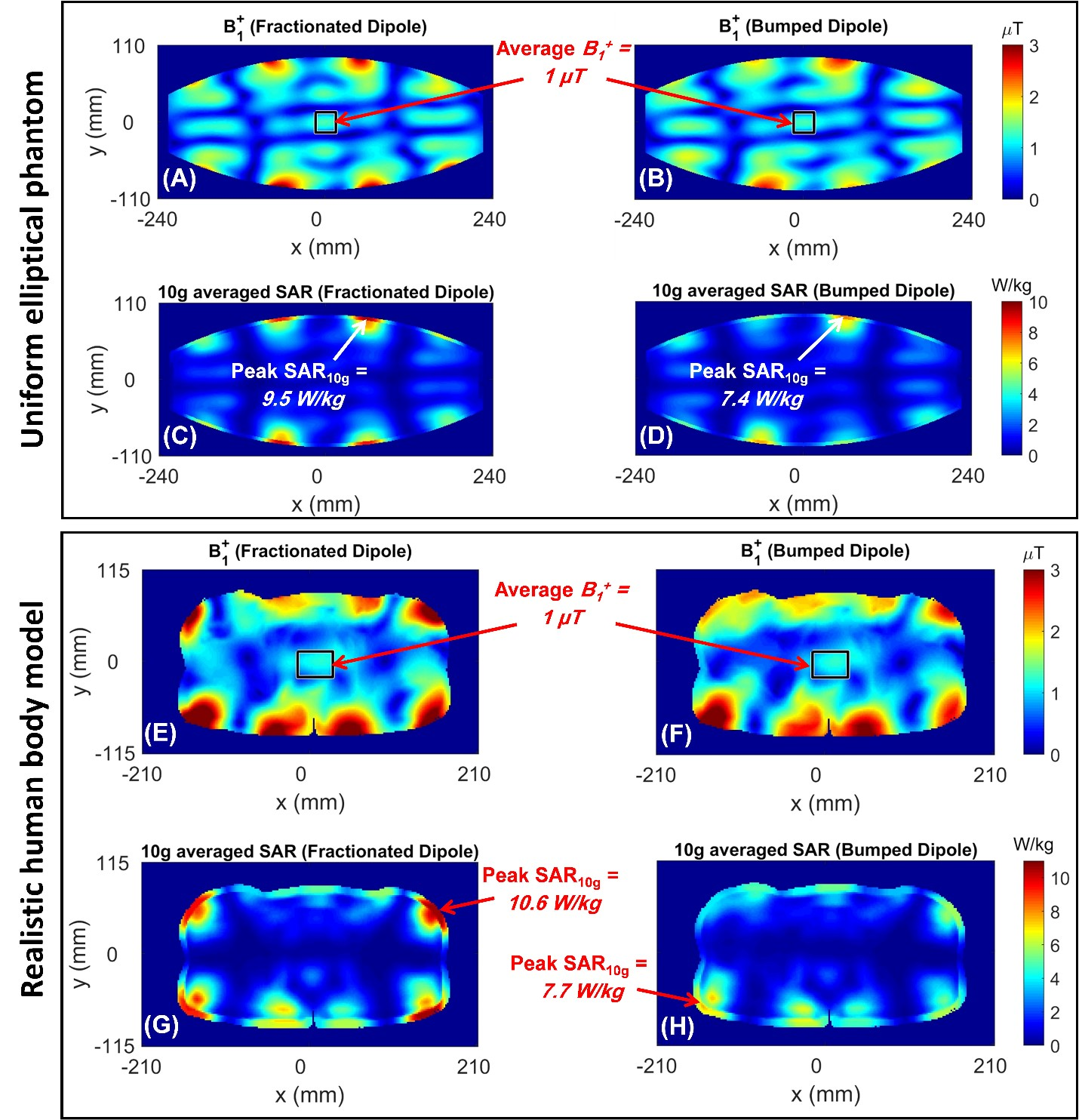 UMRAM'dan Yeni Bir Makale; Improving radiofrequency power and specific absorption rate management with bumped transmit elements in ultra‐high field MRI