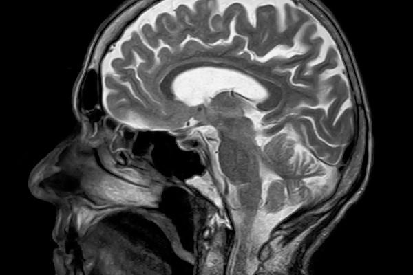 Osteopathy-MRI