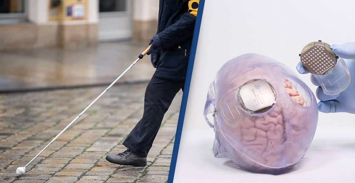 Создан мозговой имплант, для возврата зрения ослепшим 1