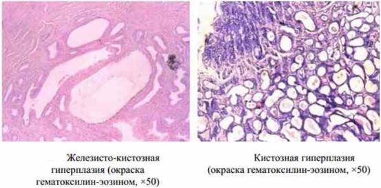 клетки эндометрия при гиперплазии