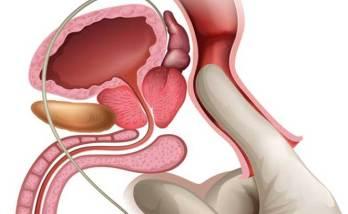Виды и симптомы простатита 2