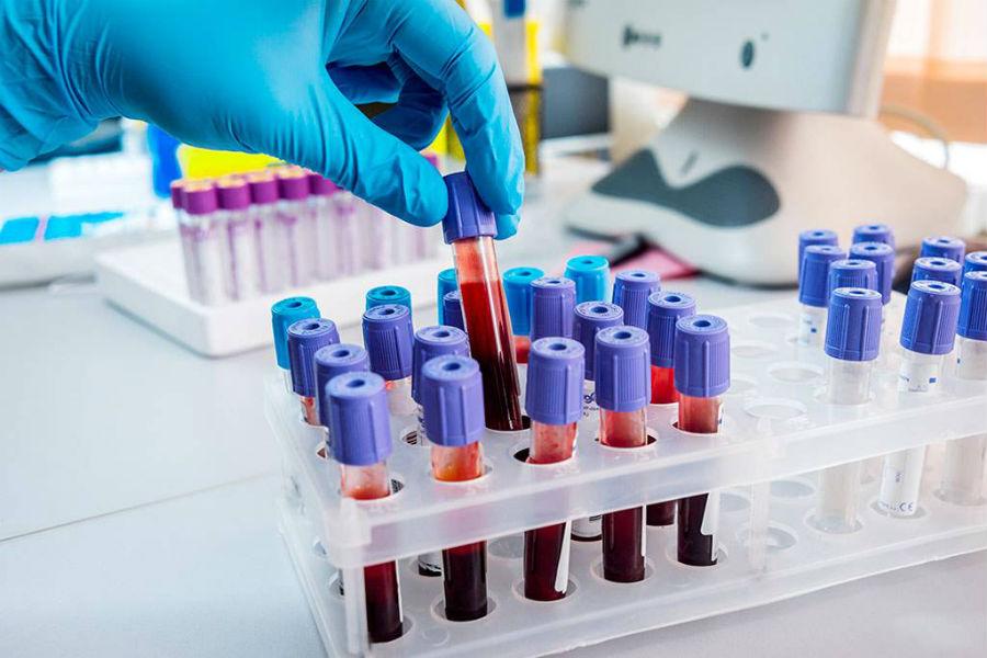 Анализ крови на электролиты и неорганические вещества
