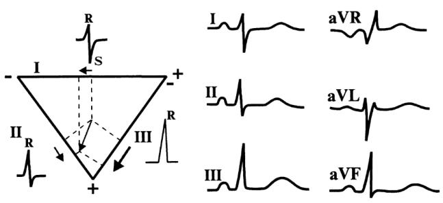 Расшифровка ЭКГ: наиболее важные показатели кардиограммы с примерами нарушений 2