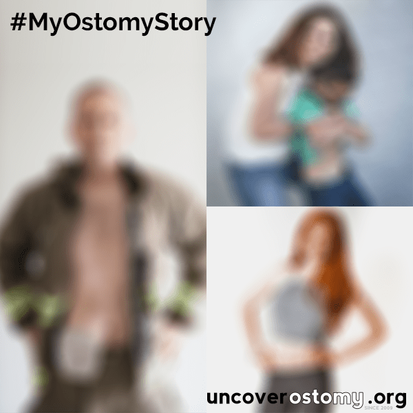 uncover ostomy announcement picture