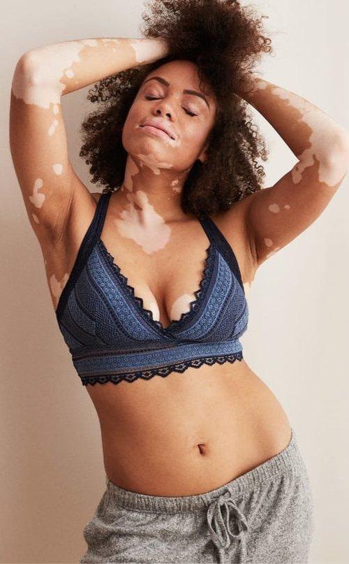 aerie-vitiligo