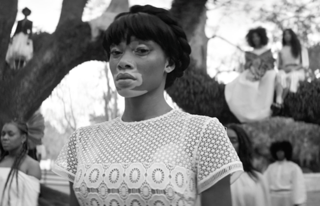 model Winnie Harlow in still from Beyonce's visual album Lemonade