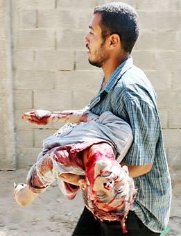 the outbreak of hostilities in Gaza