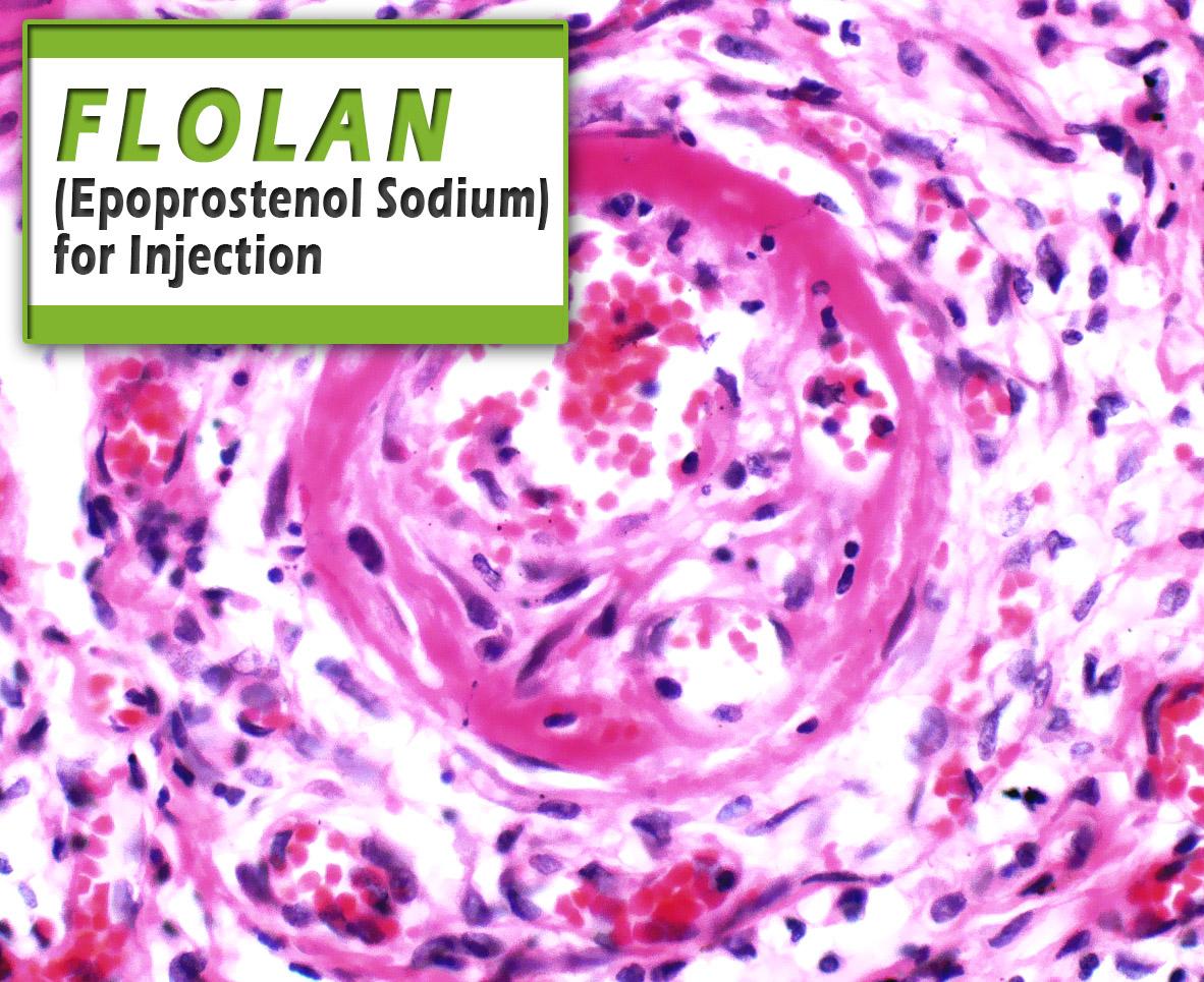Flolan (Epoprostenol Sodium) for Injection