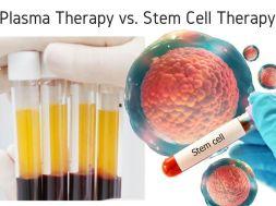 Stem-cell-vs-plasma_GulfNews