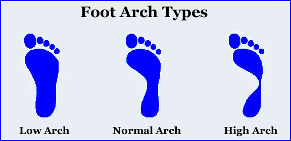 The wet test, arch height, foot type