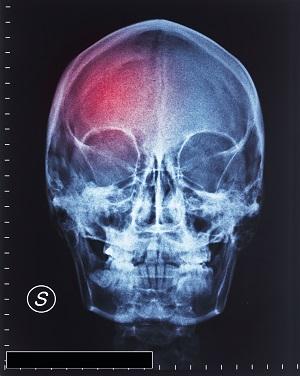 Cranial Trauma