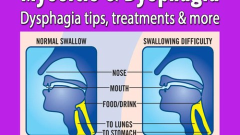 Myositis and Dysphagia