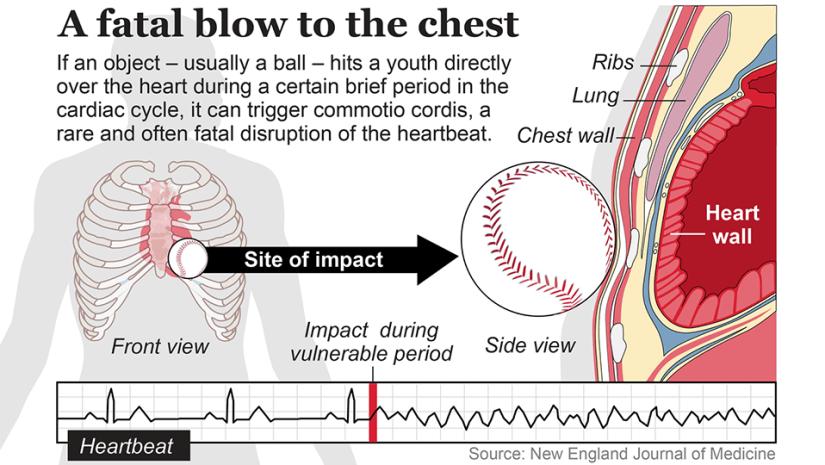 ct-chest-protector-commotio-cordis-graphic-001