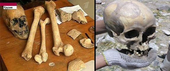 https://i2.wp.com/unexplainedmysteriesoftheworld.com/wp-content/uploads/2012/01/Giant-Skeletons.jpg