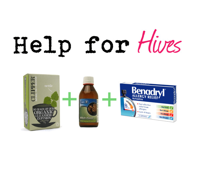 Help for Hives
