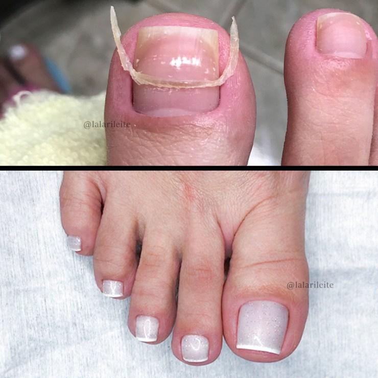 como fazer as unhas, como fazer as unhas dos pés, como tirar cutícula dos pés, como fazer as unhas, fazer as unhas, fazer as unhas dos pés, unhas dos pés com francesinha, como fazer francesinha, como fazer francesinha nos pés, como fazer francesinha perfeita, adesivo de francesinha caseiro, cutilagem dos pés, cutilagem perfeita, cutilagem perfeita dos pés, como fazer as unhas em casa, como fazer as unhas dos pés em casa, cutilagem passo a passo, faby cardoso, cindy unhas, gabriela becker, larissa leite, larissa leite unhas, unhas da lala, dicas de unhas