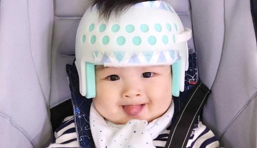頭の形が気になる!生後半年でヘルメット治療を決めた3つの理由