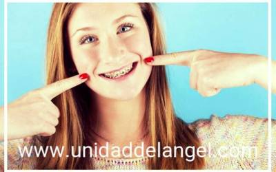 Tips para fotos con brackets