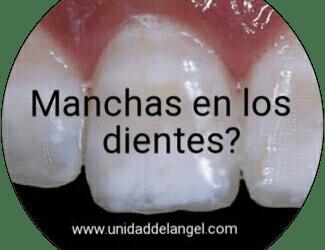 Lo que no sabes de las manchas en los dientes