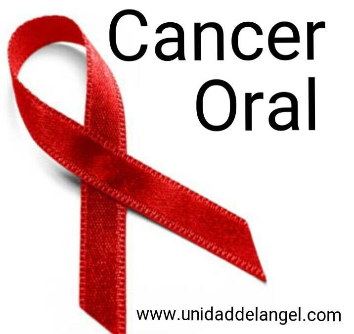 Cancer Oral: Causas