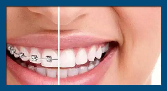 La importancia de los Retenedores Dentales tras la Ortodoncia
