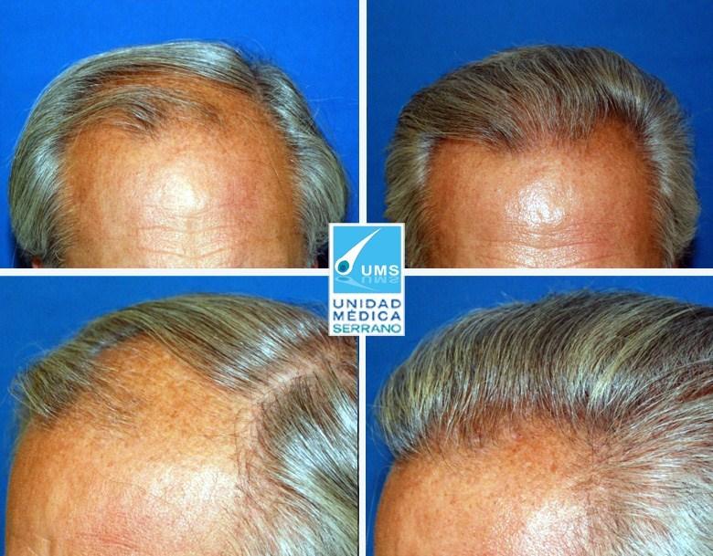 implante de pelo precio