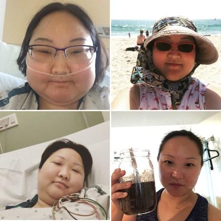 Eat Pray Lupus Uninvisible Pod