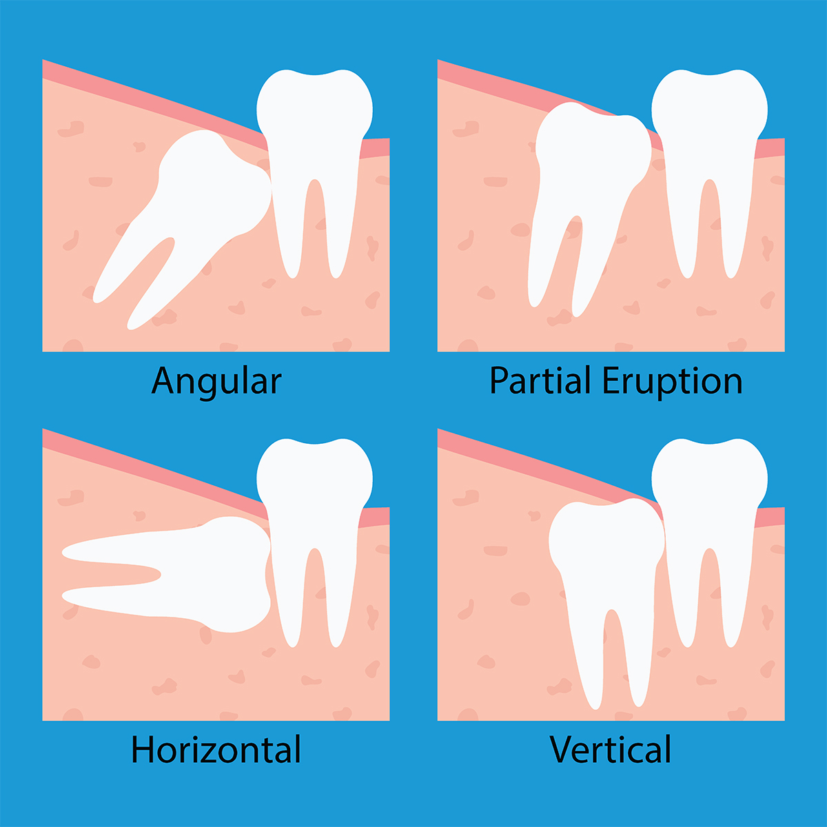 Wisdom Teeth Removal Monroe And Mint Hill