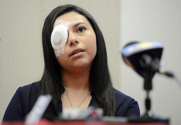 Gang Shootout Leave A 16 Year Old Girl Without A Right Eye