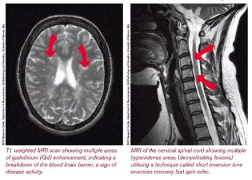 Lesions on Brain & Cervical Spinal Cord