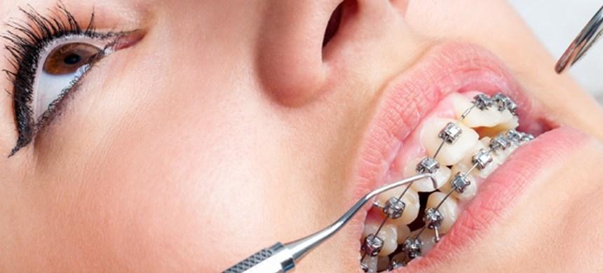 Ortodoncia: ¿necesidad o vanidad?