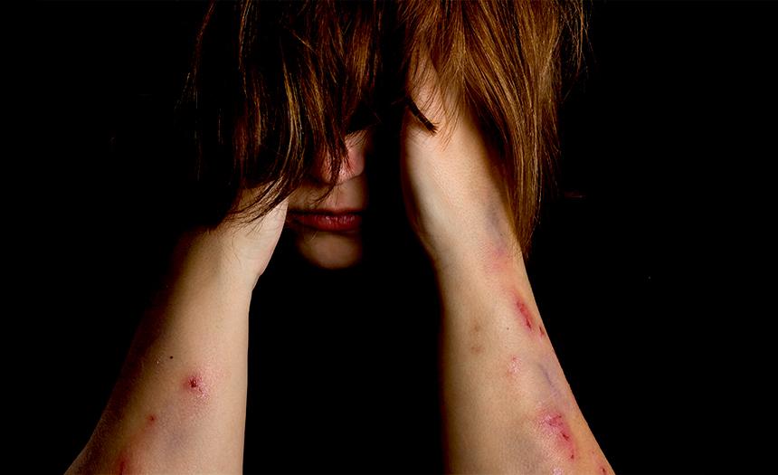 Autolesiones: 14 % de los jóvenes se mutilan