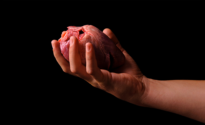 Un trasplante de corazón