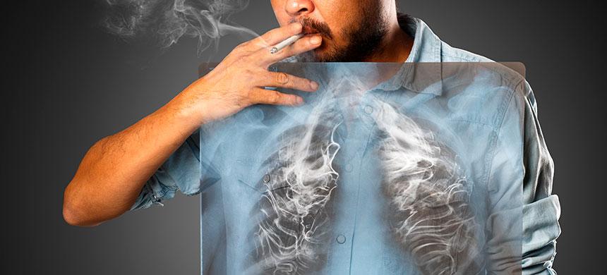 Al año, mueren ocho millones de personas por consumo de tabaco