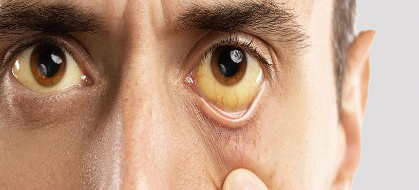 Hepatitis, la enfermedad que afecta a 71 millones de personas en el mundo