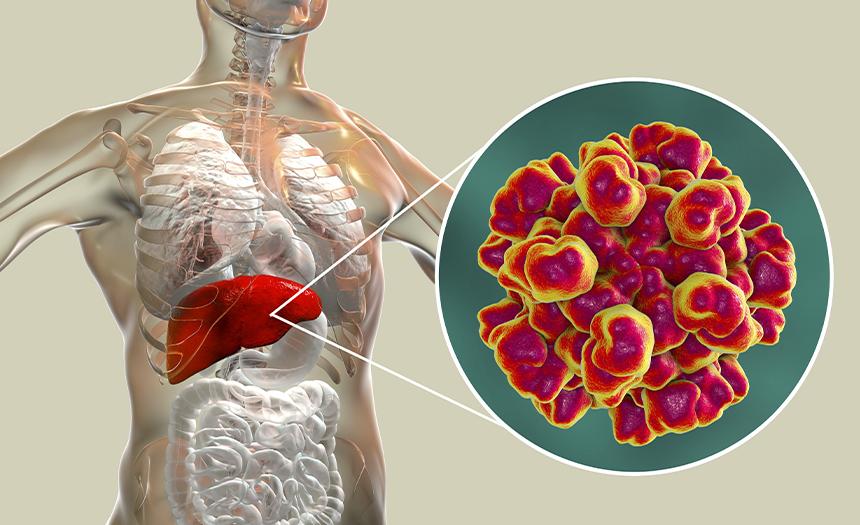 80 % de los nuevos casos de hepatitis C son personas que se inyectan drogas
