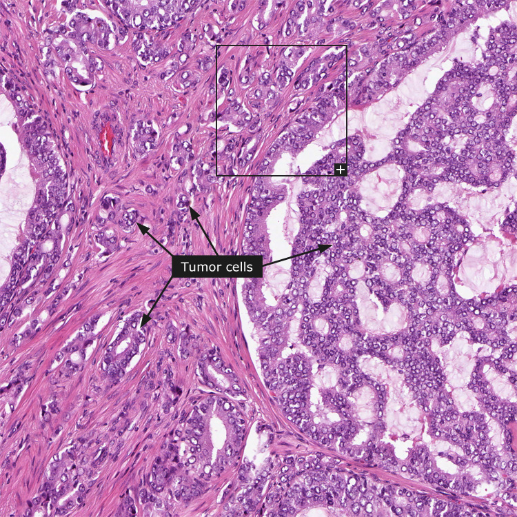 Histologically Aggressive Form Of Prostate Cancer