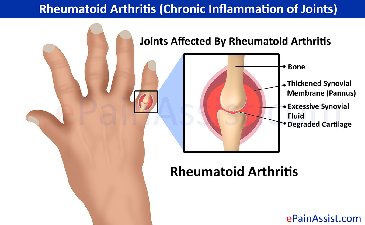 How Many Different Types Of Rheumatoid Arthritis Are There
