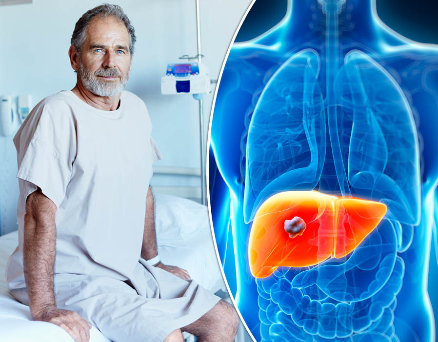 Very Rare Form Of Liver Cancer