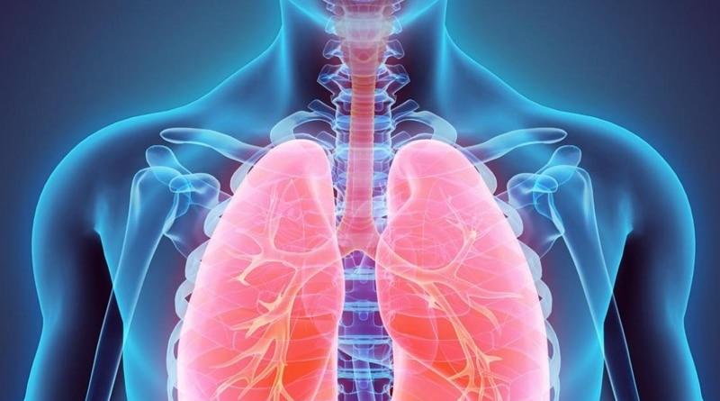 Fibrose pulmonaire: une maladie qui altère le fonctionnement du poumon