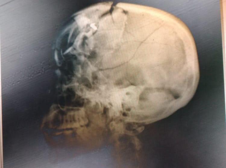 Autopsie du cadavre du président Jovenel Moïse.