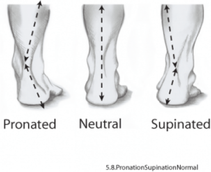 Pronated-and-Supinated-Right-Foot