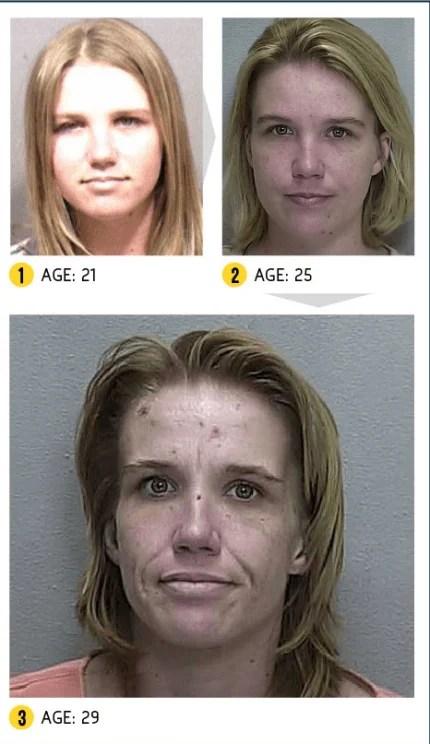 Cynthia tossicodipendente
