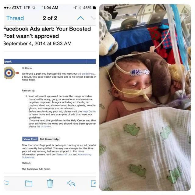 foto neonato malato rifiutata da faceboo