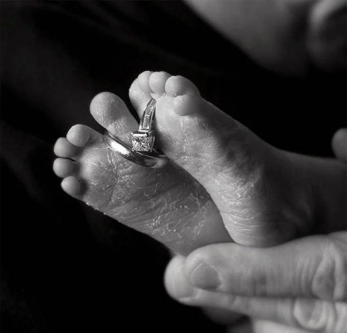 piedi con anello