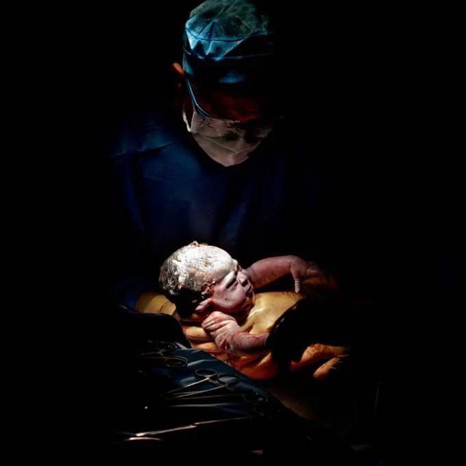 neonato tra braccia medici