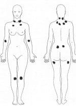 El yoga ayuda a combatir los síntomas de la fibromialgia