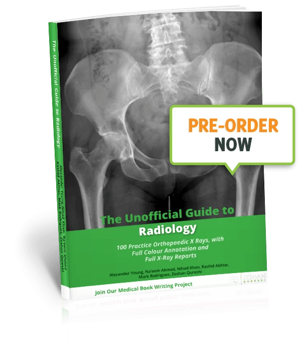 The Unofficial Guide to Medicine - Unoffical Guide To Radiology - 100 Practice Orthopaedic X-Rays Pre-Order Now image