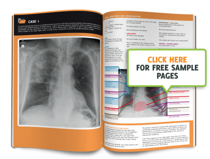 The Unoffical Guide To Radiology: 100 Chest X-Rays - Download Preview One image