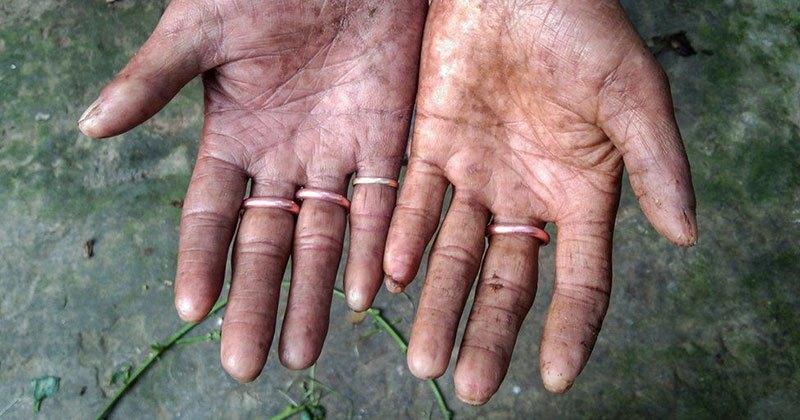 Family Born With No Fingerprints